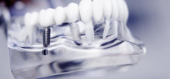 Kaizen Dental Richmond dentist BC dental implants
