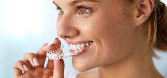 Kaizen Dental Richmond dentist BC Invisalign