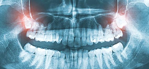Kaizen Dental Richmond dentist BC wisdom teeth extraction removal