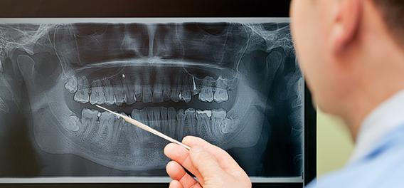 Kaizen Dental Richmond dentist BC Restoration Care