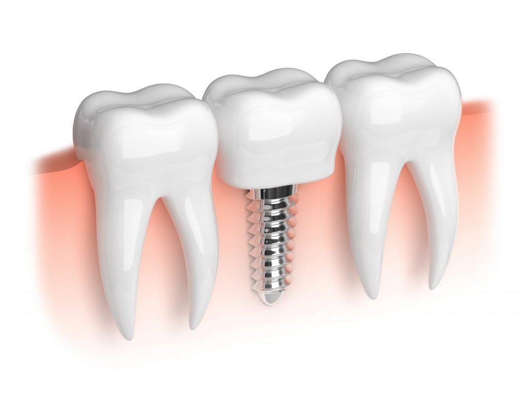 Read more on Caring for Dental Implants in Richmond