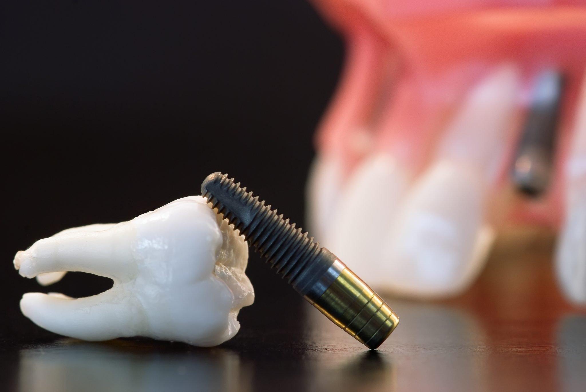 Caring for Dental Implants - Richmond Dentist | Kaizen Dental
