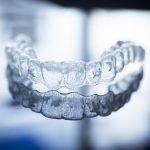 Invisalign: Get a Straight Smile with Clear Braces in Richmond!