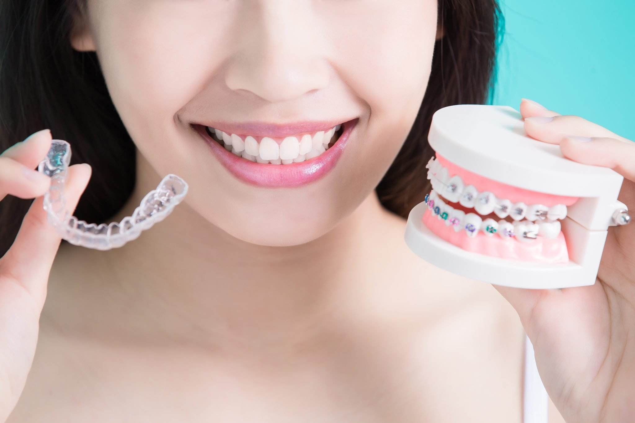 Invisalign Braces Retainers - Kaizen Dental Richmond