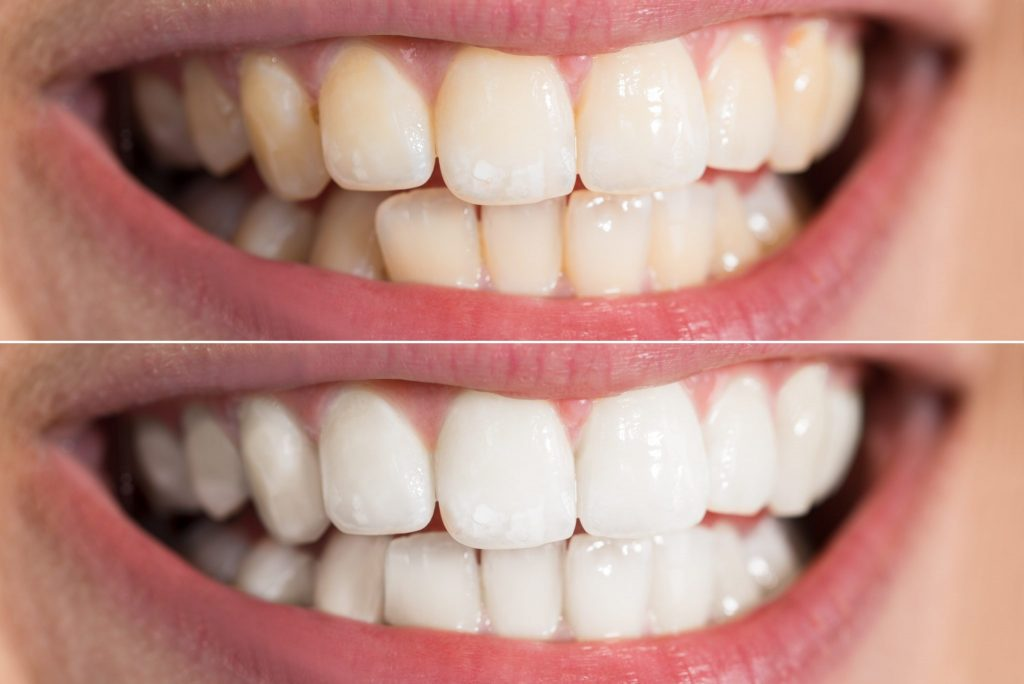 Read more on How Teeth Whitening Treatments Brighten Richmond Smiles