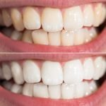 How Teeth Whitening Treatments Brighten Richmond Smiles