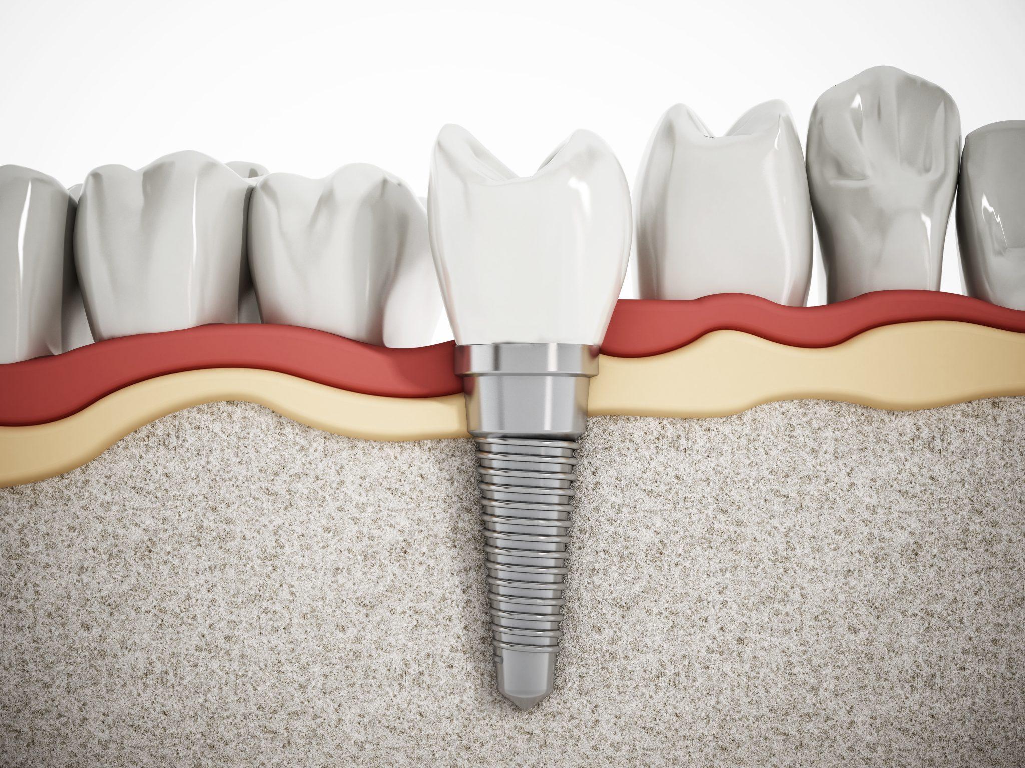 Differences Implants, Bridges, Dentures | Kaizen Dental