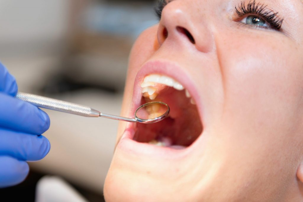 woman getting screened for oral cancer kaizen dental richmond