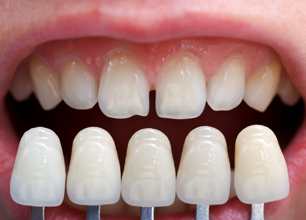 Read more on How to Fix Gaps in Teeth