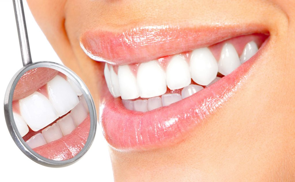 happy-smile-cosmetic-teeth-whitening-Richmond-Kaizen-Dental